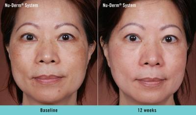 Skin Treatments Before And After Skin Treatments Renu